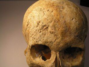Crâne avec marques de syphillis